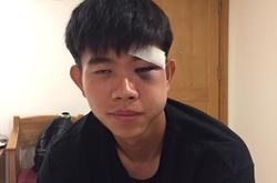"""Va chạm mạnh, khuôn mặt của cựu cầu thủ HAGL bị """"biến dạng"""""""