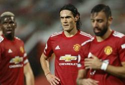 Đội hình ra sân Arsenal vs MU tối nay: Pogba và Cavani cùng xuất trận