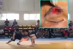 Tai nạn húc đầu tại giải Jujitsu toàn quốc, võ sĩ phải khâu 30 mũi