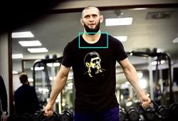 Khamzat Chimaev xuất hiện với vết sẹo lạ, fan vẫn chưa an tâm?
