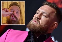 Vụ Conor McGregor bị tố tấn công DJ người Ý: Đối phương bị đánh gãy mũi, đã gửi đơn kiện