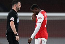 Tiền đạo Arsenal bị đuổi khỏi sân chỉ sau 2 phút