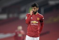 """MU lập kỷ lục tồi tệ về ghi bàn trước """"Big 6"""" Ngoại hạng Anh"""