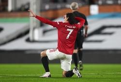 Cavani khiến Sanchez và Falcao xấu hổ về thành tích ở MU