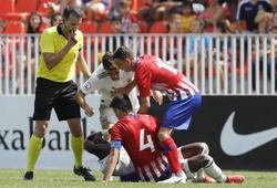 Derby Madrid: Tiền đạo của Real bị... cắn và phạm lỗi 20 lần