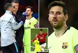 Tiết lộ sốc: Messi không thể thở bình thường sau pha va chạm kinh hoàng với Smalling