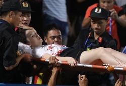 CĐV nữ bị tai nạn, đổ máu vì pháo sáng tại Hàng Đẫy
