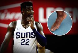 Sai lầm chí mạng ngăn cản Puma vượt mặt Nike tại NBA chính là... bàn chân của siêu tân binh