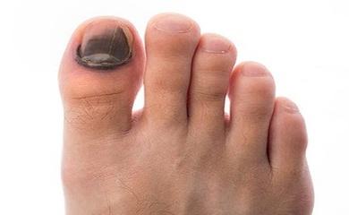 Vì sao móng chân bị đen khi chạy và cách chữa