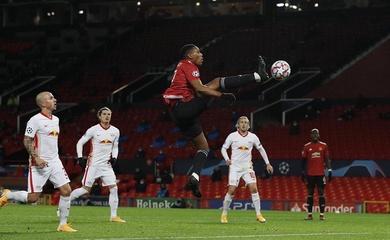 Cập nhật chấn thương mới nhất của MU trước trận gặp Arsenal