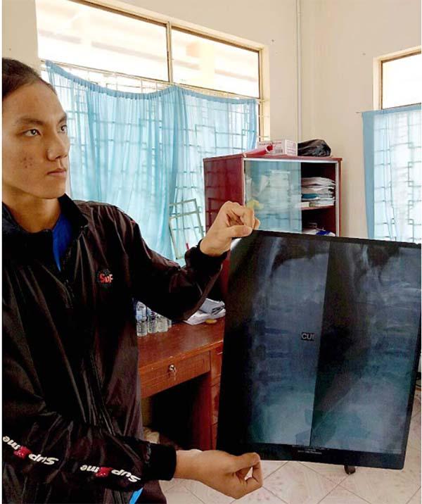 Bóng chuyền nữ Việt Nam: Tề gia chưa nổi, sao bình thiên hạ?