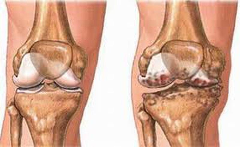 Chấn thương khi chạy bộ - Phần 1: Chấn thương đầu gối