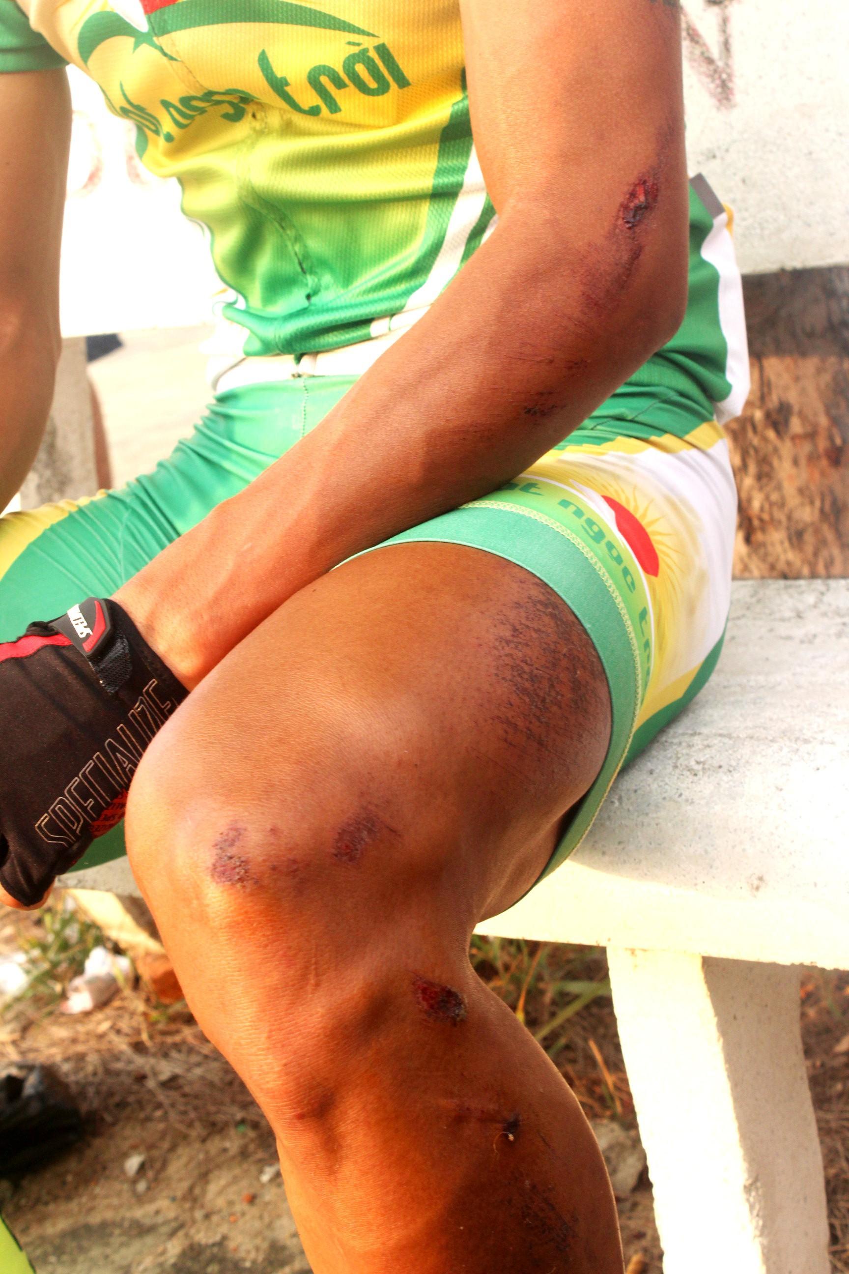 Tay đua quê An Giang chỉ bị xây xát ngoài da và vẫn có thể tiếp tục thi đấu
