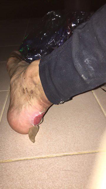 Gót chân bị blister của Cao Ngọc Hà