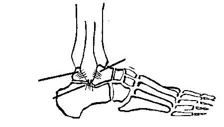 Khớp có chân được ổn định bởi các dây chằng bên và giữa. (Theo ĐH Y Hà Nội)