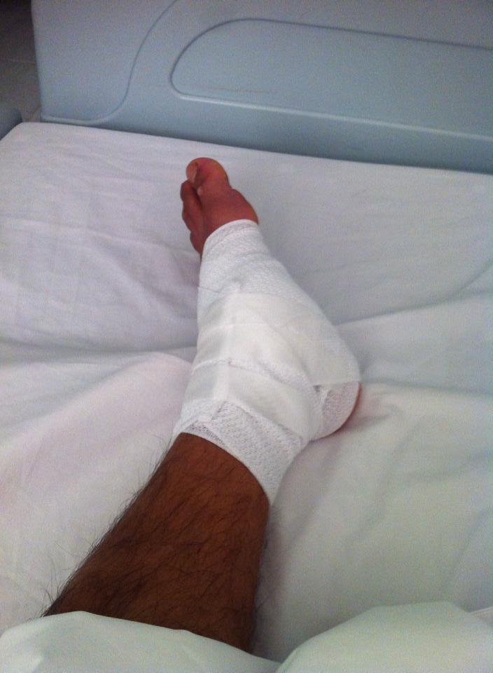 Phước Thọ phẫu thuật chấn thương rạn xương bàn chân. Ảnh FBNV