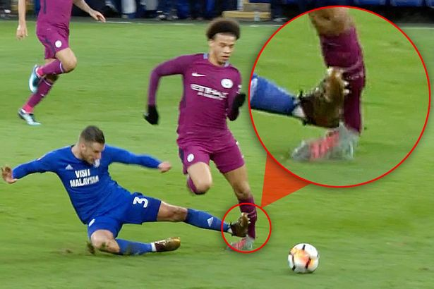 Hình ảnh: Sane bị phạm lỗi cực kỳ thô bạo ở FA Cup